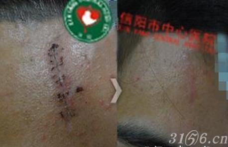 疤痕贴 疤痕凝胶贴、手术疤痕克星