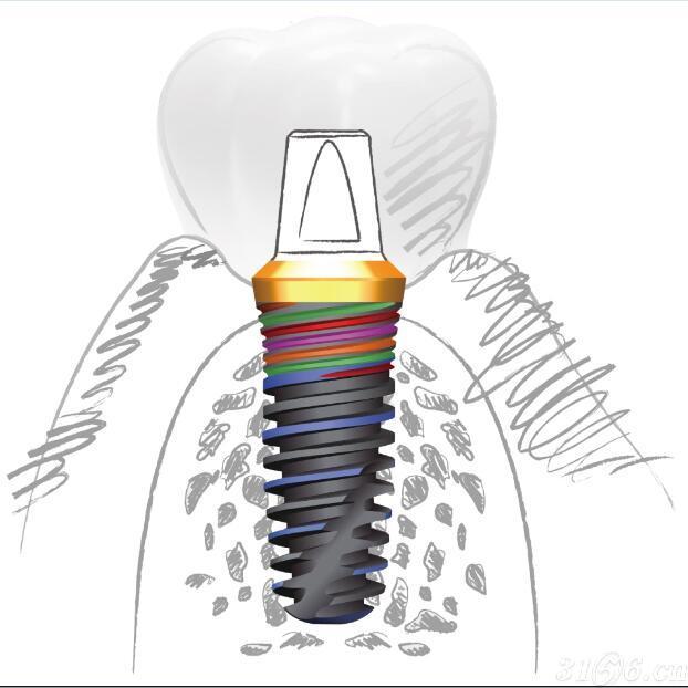 【进口】Ti-Star种植体系统、口腔种植体、人工牙根